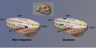 Brain_image_dyslexia_shaywitz_cropped